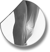 Indications for knee arthroscopy