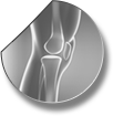 Introduction for knee arthroscopy